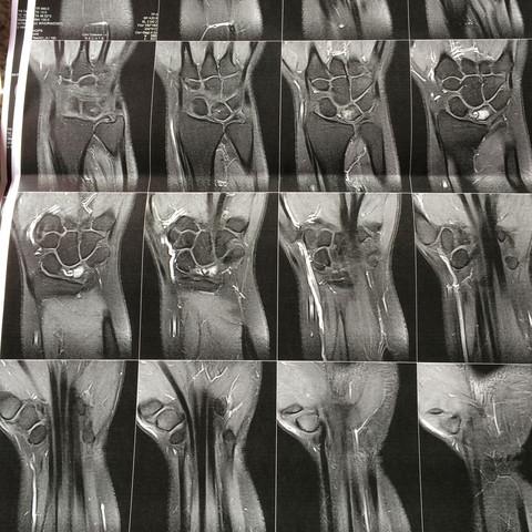 MRT re, Handgelenk mit Kontrastmittel - (Schmerzen, MRT Handwurzelknochen)
