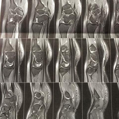 Seitenansicht - (Schmerzen, MRT Handwurzelknochen)