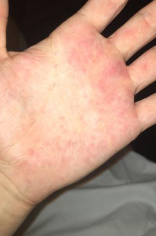 Handfläche Juckt