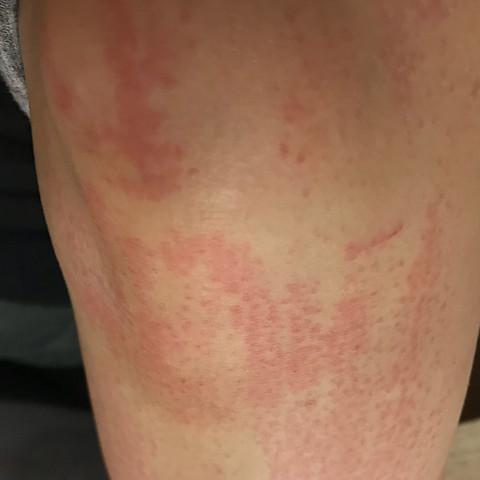 Bein mit Ausschlag  - (Gesundheit und Medizin, Beine, rasieren)