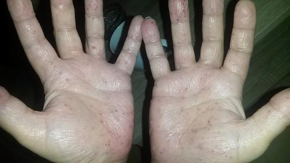 Ein Bild von dem Ausschlag - (Haut, Allergie)