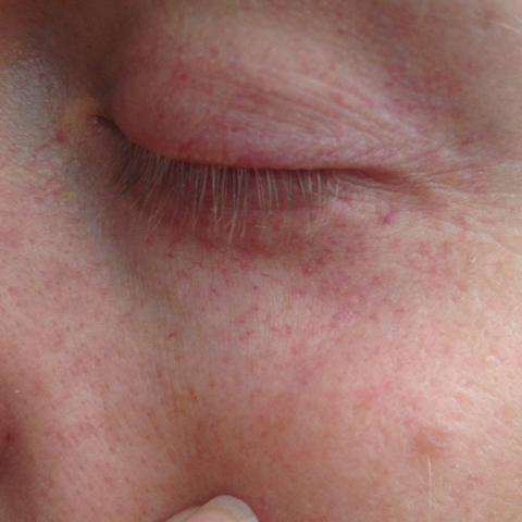 Die Gründe der Wassergeschwulst und des Schmerzes des Auges