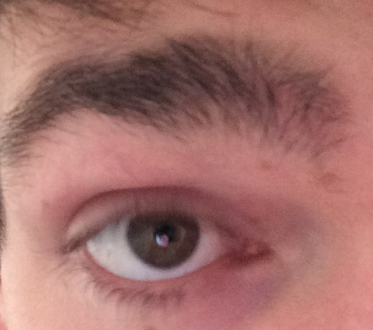 Augenbraue  - (Haut, Dermatologie)