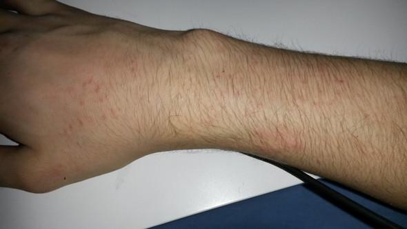 Mein Arm mit dem Ausschlag - (Gesundheit, Bruch, Ausschlag)