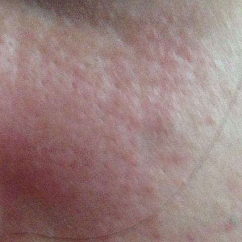 So sieht das aus und meine Haut sah noch nie so schlimm aus !!! - (Haut, Pickel, Creme)