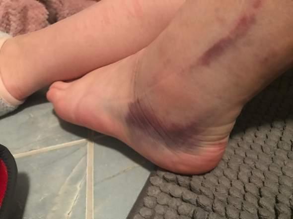 Fuß umgeknickt welcher arzt