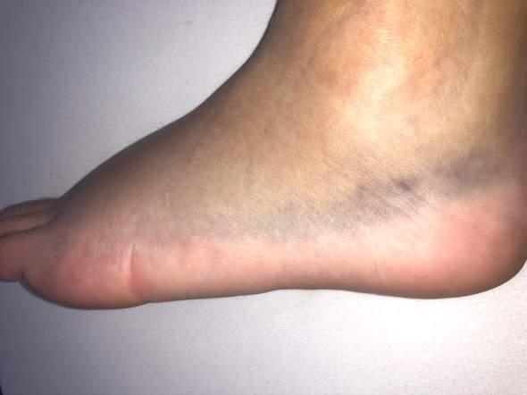Fuß umgeknickt wie lange krank