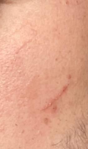 Barbier beim Rasieren geschnitten Narbe?
