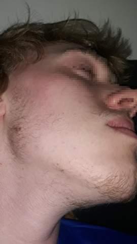 Bart - rentiert sich bei mir Minoxidil?