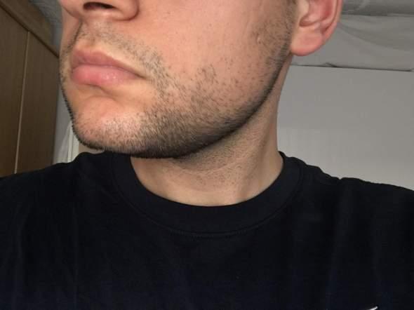 Bart bekommen nach 21? (Männer, Pflege)