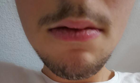 Bart lassen oder weg?