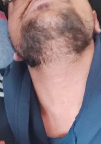 - (Männer, Bart, Bartwuchs)