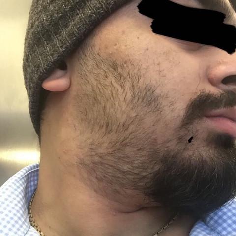Bart nach 4 wochen