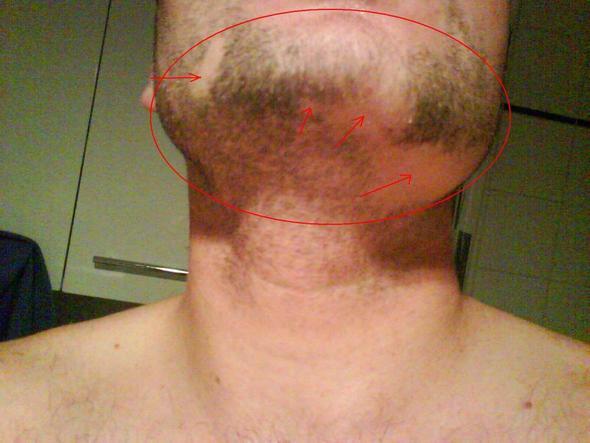 Barthaare verlieren Kreisförmig ihre Pigmente (Siehe Markierungen) - (Beine, Flecken, Bart)