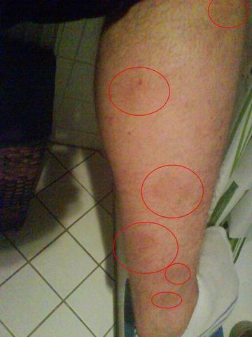 rot-bräunliche Flecken - (Beine, Flecken, Bart)