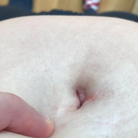 Bauchnabel eitriger Omphalitis