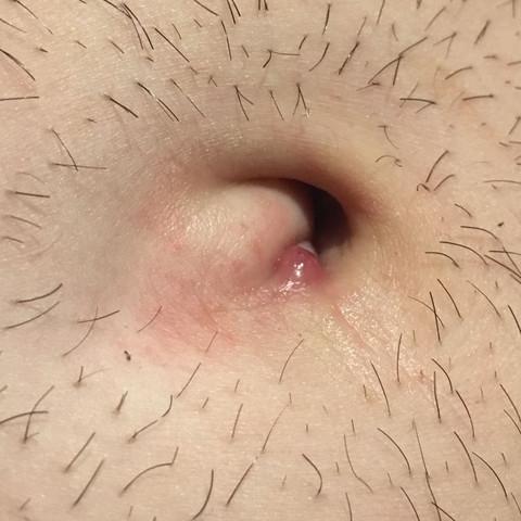 Haut schamlippe knubbel unter der Knubbel an