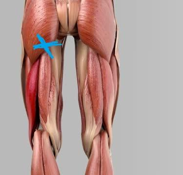 Muskelfaserriss Oberschenkel Hinten