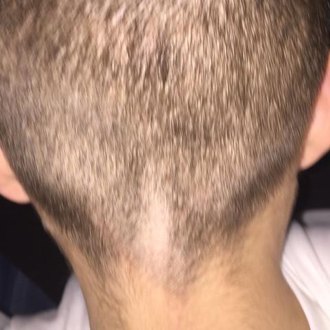 Haare abrasieren mann