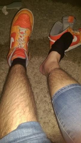 Bein ist an der Ferse mit Bluterguss - (Beine, Orthopäde, Sprunggelenk)