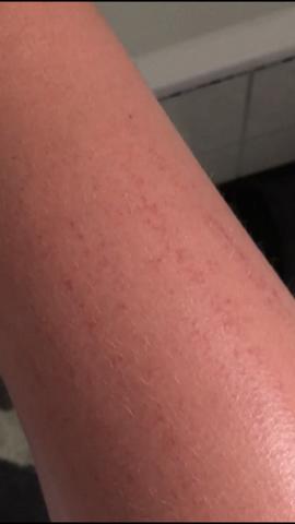 Nach rasur jucken beine Juckende Achseln