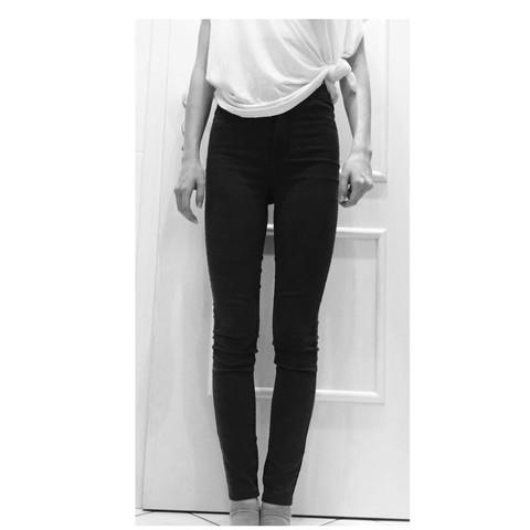 Beine - (Gewicht, Magersucht)