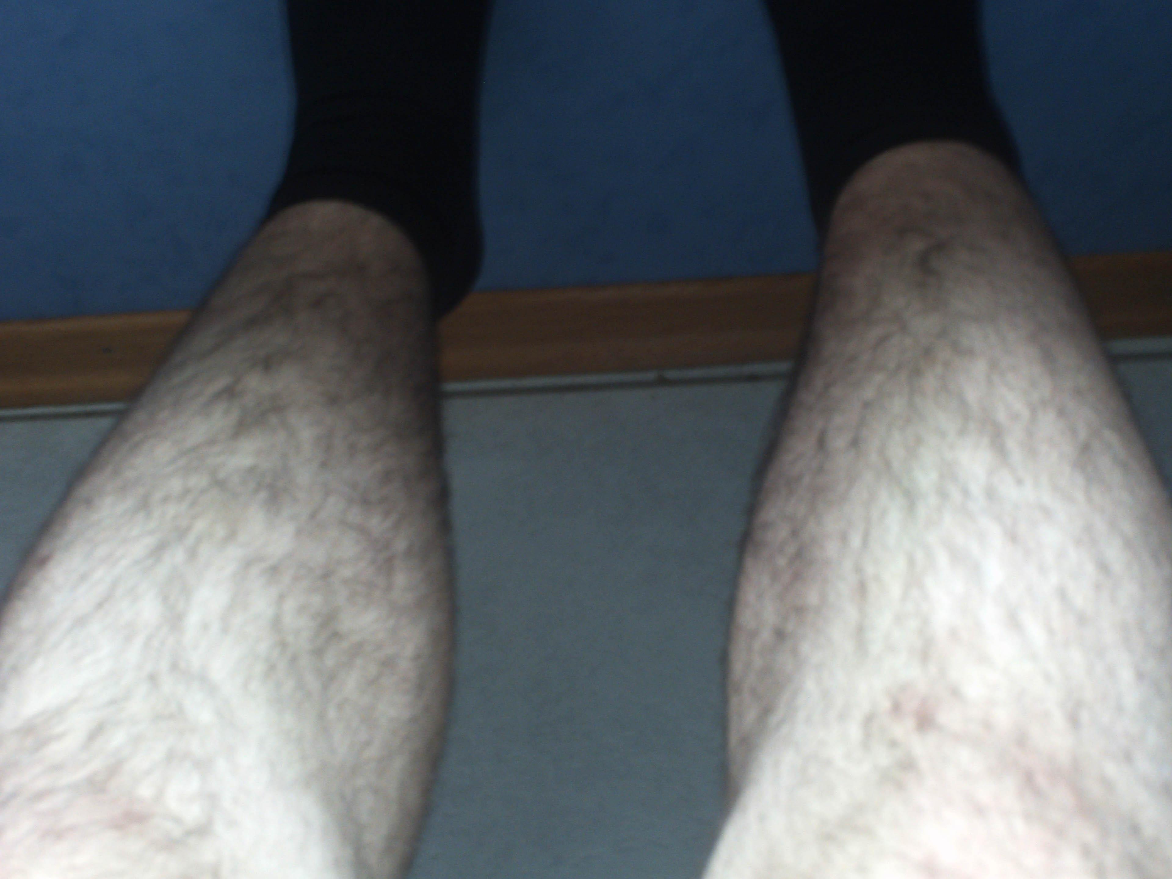 Beine zu Haarig? Rasieren ja/nein? (Haare, Aussehen, Pubertät)