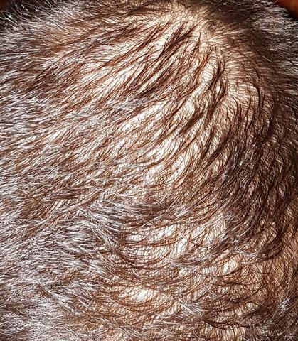 Mein kopf  - (Gesundheit, Männer, Haarausfall)