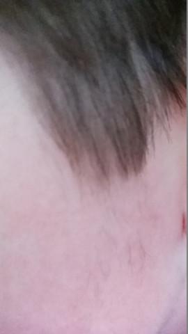 Haare an den Koteletten - (Jugend, Bartwuchs)