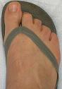 Bekommt man Hammerzehen vom Flip Flops tragen?