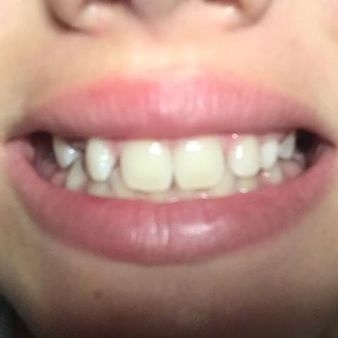 Benötige ich eine Zahnspange---?