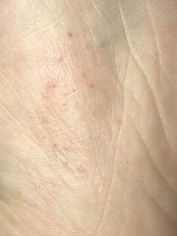 Bettwanzen Oder Flohe Hilfe Hautausschlag