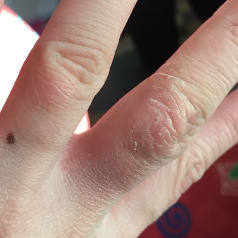 Es ist der Stinkefinger  - (Gesundheit, Krankheit, Finger)