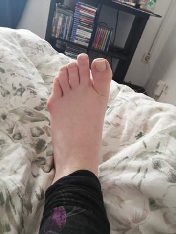 - (Füße, Beule, Beule am Fuß)