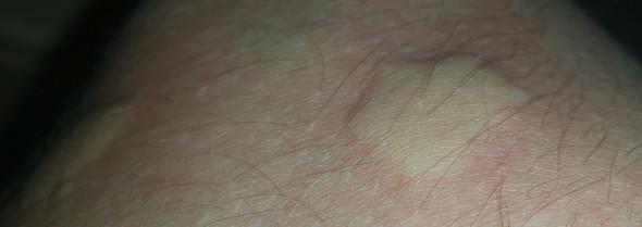 Beulen auf dem Arm - (Medizin)