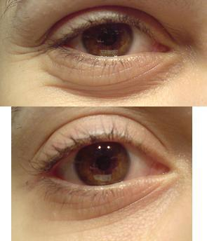 Die kosmetische Chirurgie des Augenlider dass es