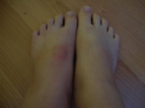 mein Fuß - (Gesundheit, Bruch)