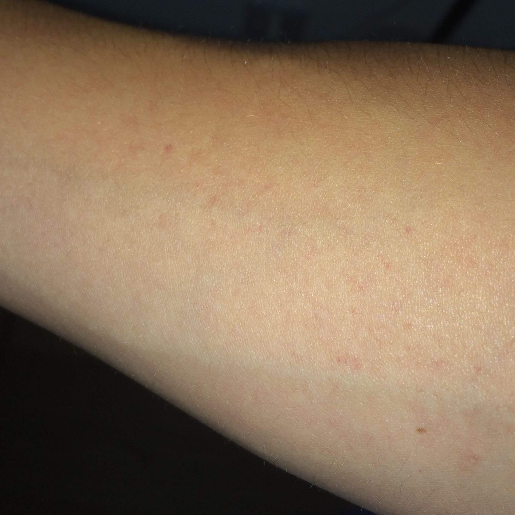 Bin ich allergisch oder habe ich einen Ausschlag? (Allergie)