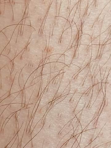 Bin ich ein Haarwuchs-Mutant?