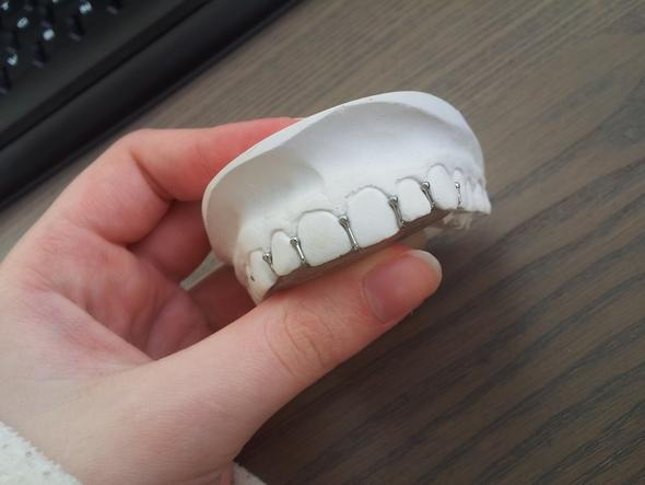 Aufbissplatte von Außen - (Zähne, Zahnspange)