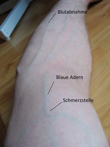 Adern unterarm sichtbare am Vaskularität verbessern: