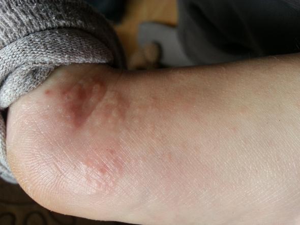Das ist mein Fuß  - (Gesundheit, Hand)
