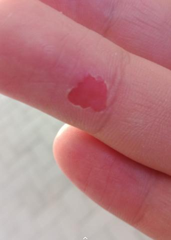 Blase an Finger flaster darauf oder an der luft ?