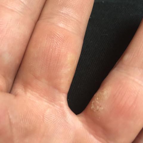 Hände blasen Handpilz (Tinea