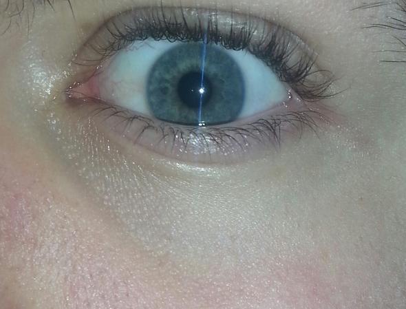Blau Unter Den Augen Hilfeee Augenringe