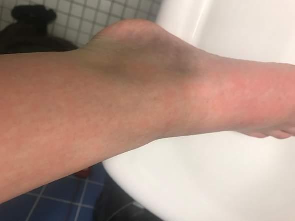 Blaue Beine mit roten Flecken?