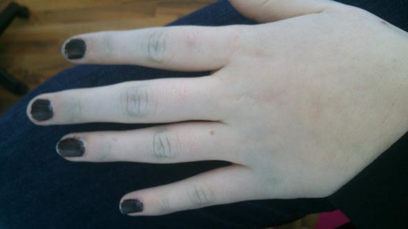 eine hand - (Gesundheit, Haut, Hand)