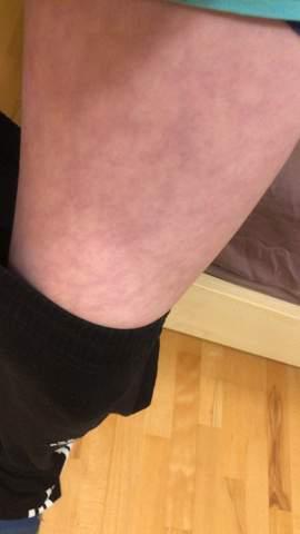 Blaue Flecken am Bein?