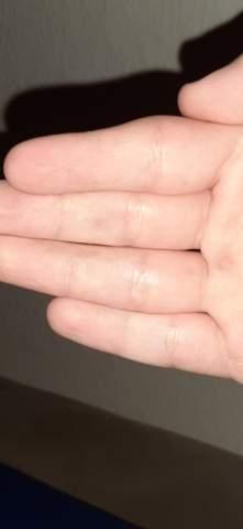 Blaue Flecken an den Händen ohne Grund?