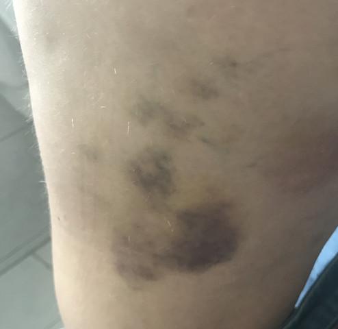 Blaue flecke am körper ohne sich gestoßen zu haben